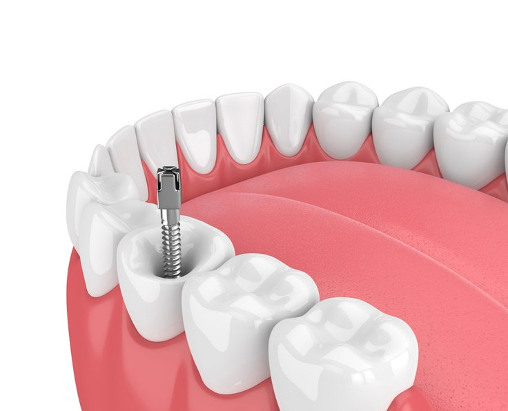 Root Canal Therapy Airdrie